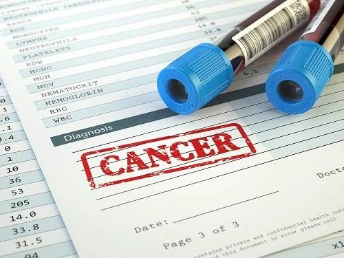 Analize care depistează prezența cancerului