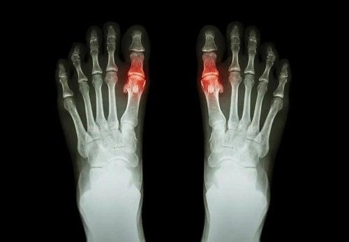Artrita la radiografie