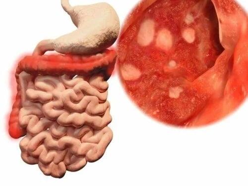 Bacterii prezente în intestine