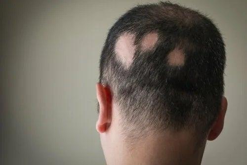 Bărbat cu alopecie