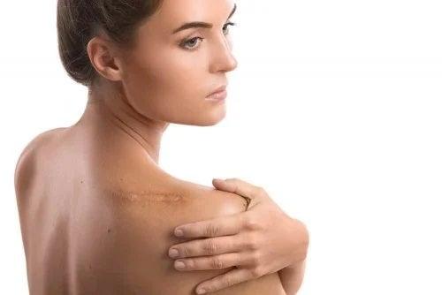 Beneficiile uleiului de citronella pentru piele