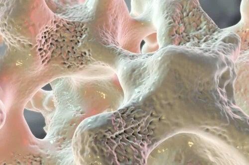 Diabetul crește riscul de fracturi osoase