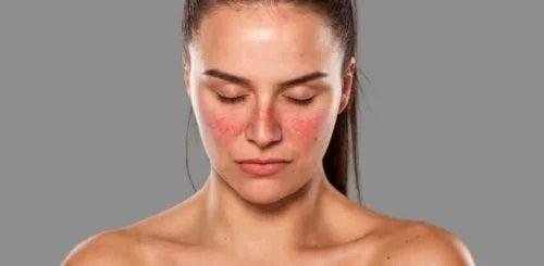 Femeie bolnavă de lupus