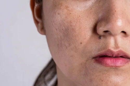 Femeie cu pete pigmentare