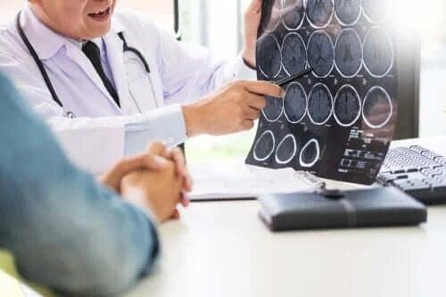 Glutenul provoacă boli neurologice?