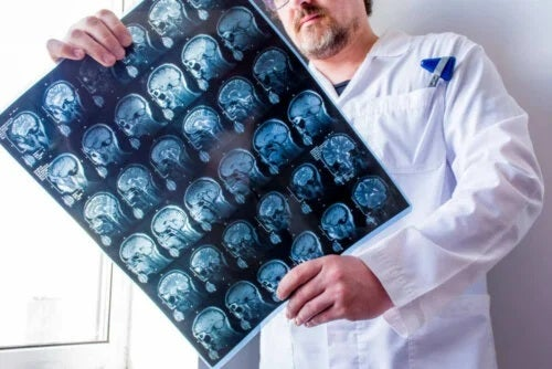 Medic care analizează tipurile de epilepsie