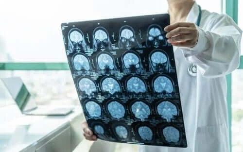 Medic care caută un tratament pentru encefalită