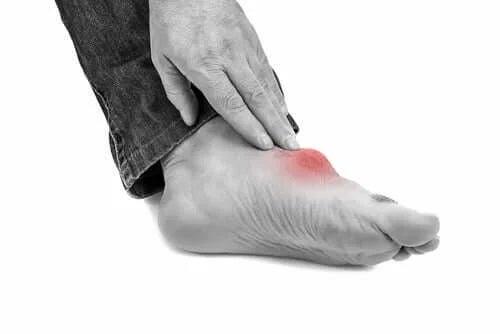 Picior afectat de gută