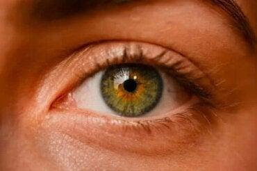 Nevi oculari: ce sunt pistruii oculari?