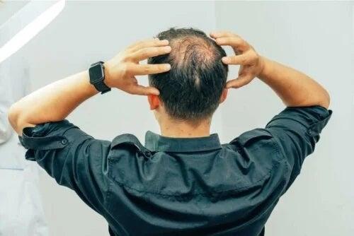 Tipurile de alopecie masculină