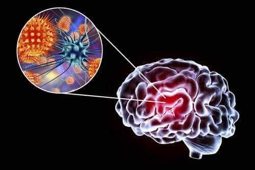 Simptome, cauze și tratament pentru encefalită