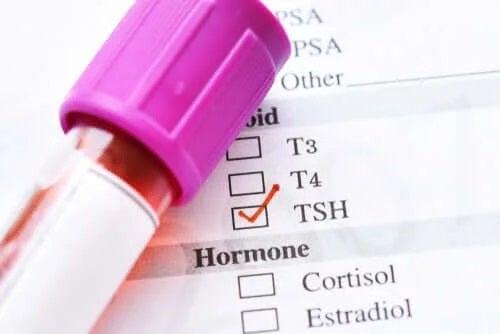 Hormonul de stimulare tiroidiană scăzut: cauze