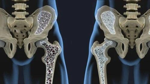 Factorii de risc asociați osteoporozei afectează oasele