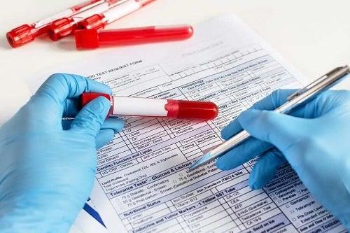 Medic care ia o probă de sânge