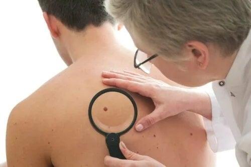 Medic care recomandă tratamentul dermatofibromului