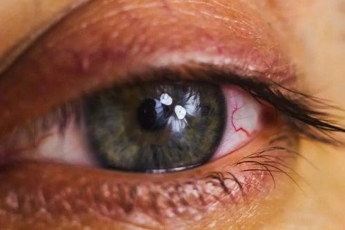 Ochi roșu iritat