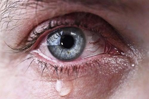 Ochii care curg în exces