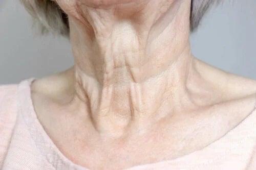Riduri pe gât