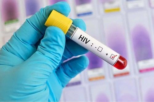 Test pentru depistarea virusului HIV