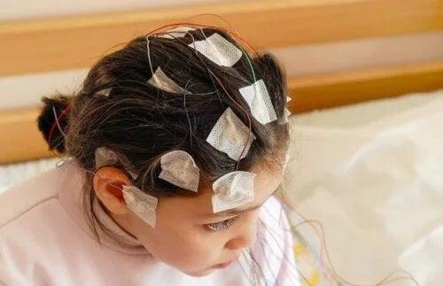 Tratament pentru epilepsia la copii