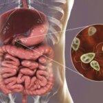 Giardia lamblia (Giardioza)- simptome și tratament Dieta pentru tratamentul giardiozei adulte