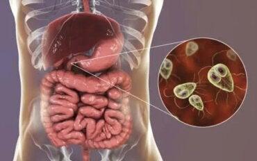 simptome și semne ale giardiozei)