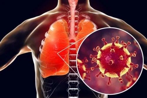 Agent patogen care cauzează bronșită