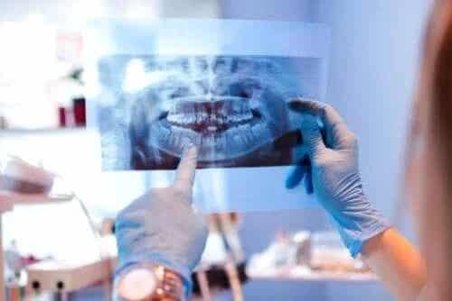 Cauzele luxației articulației temporomandibulare