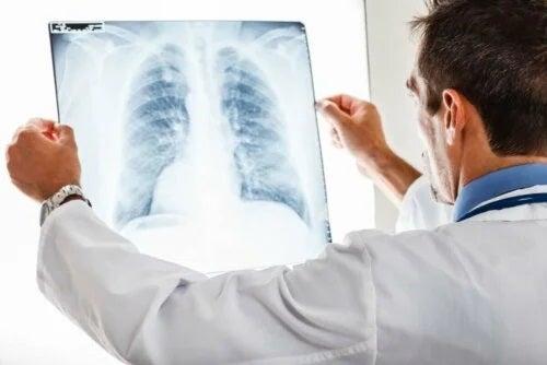 Medic ce explică dacă bronșita este contagioasă