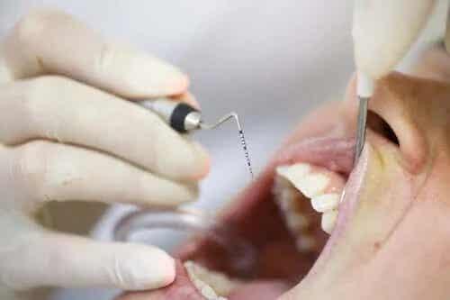 Cauzele pioreei: o boală a gingiilor