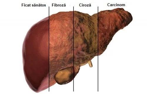 Metabolismul ficatului care duce la ciroză