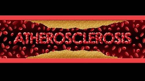 Simptome și tratamente pentru ateroscleroză