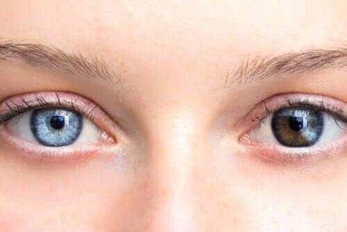 De ce apare schimbarea culorii ochilor?