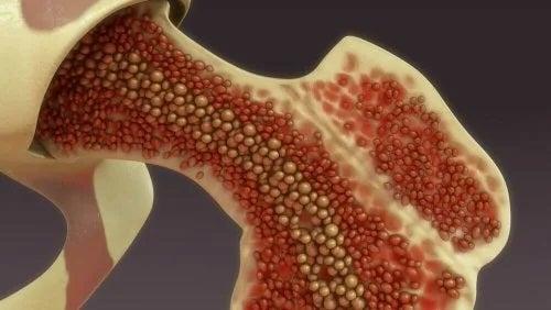 Abordul vascular intraosos (perfuzia osoasă)