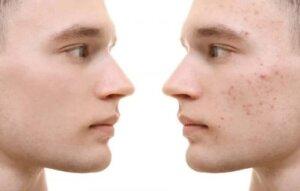 Cum să folosești turmericul pentru tratarea acneei
