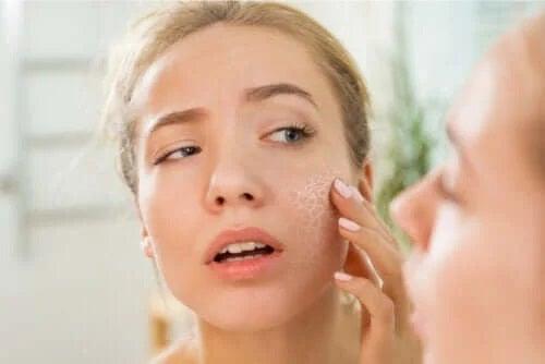 Care sunt cauzele pielii uscate?