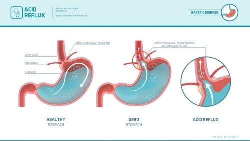 Reprezentare grafică a refluxului gastroesofagian