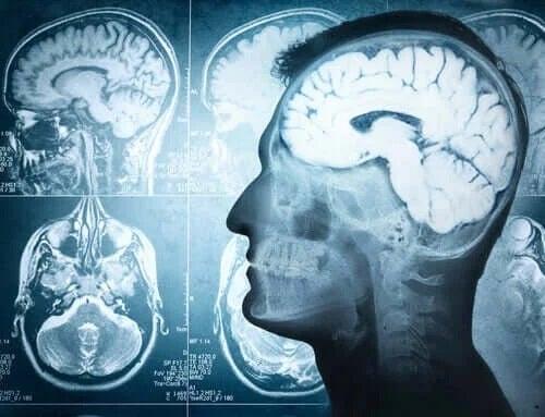 Hernia cerebrală la om