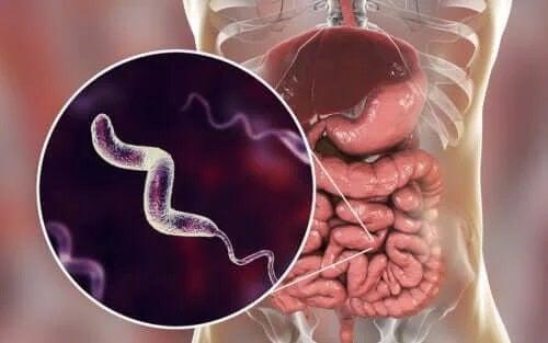 Infecțiile cu Campylobacter: caracteristici