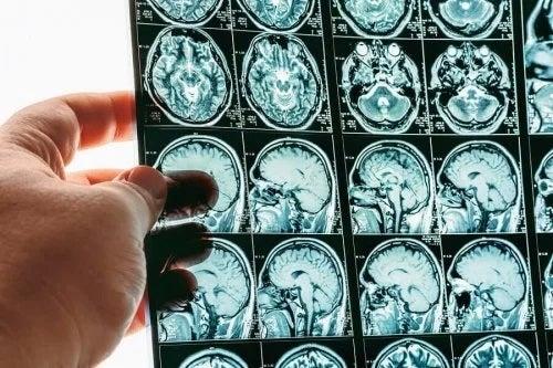 Hernia cerebrală sau hernierea creierului