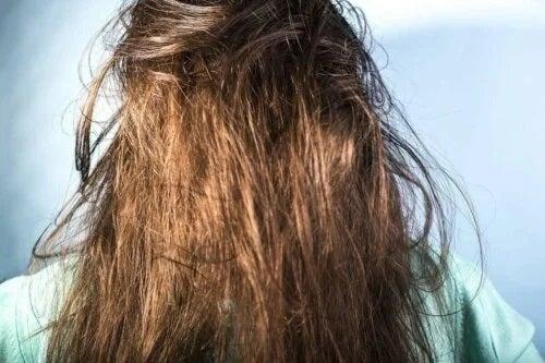Păr gras care arată neplăcut