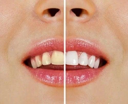 Produse naturale pentru albirea dinților