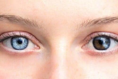 Schimbarea culorii ochilor la femei