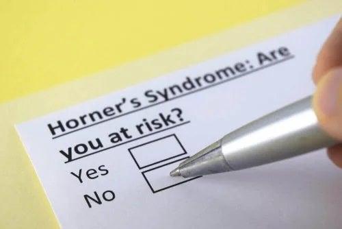 Ce este sindromul Horner? Informații importante