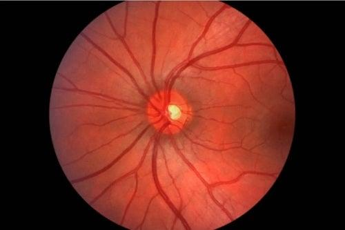 Bolile ochilor la diabetici