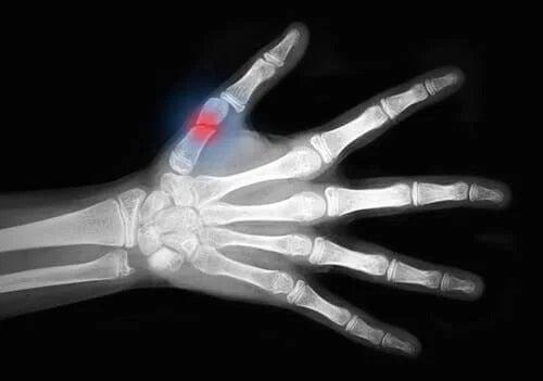 Fractură la deget
