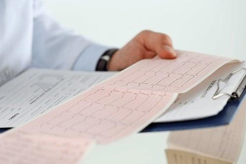 Medic care citește o electrocardiogramă