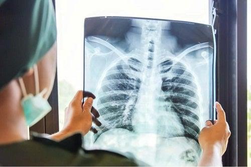Medic ce planifică transplantul de plămâni