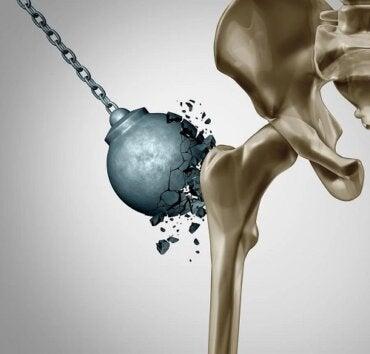 Osteoporoza după menopauză: cum reduci daunele?