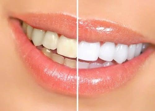 Rezultate la procedurile de albire a dinților